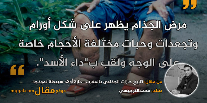 تاريخ حارات الجذامى بالمغرب -حارة أولاد سبيطة نموذجا- بقلم: محمدالنرجيسي|| موقع مقال