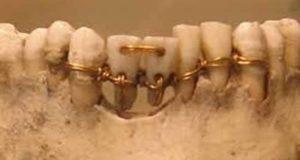 """هذه اول صورة صورة عمرها أكثر من 4000 سنة لعملية جراحية أجراها المصريين القدماء على الأسنان و الفك و كان أقدم طبيب أسنان هو """" حسى - رع """" وزير الملك زوسر"""